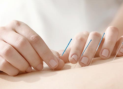 About Grace Li, Acupuncture Clinic in Canterbury